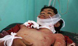 عربستان جان ۳۰۰ هزار کودک را در حدیده تهدید میکند
