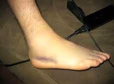 تورم مچ پا نشانه هشدار این بیماری جدی است!