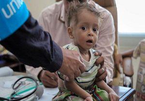 مرگومیر ناشی از وبا در یمن نسبت به سال گذشته ۹ برابر شده است!
