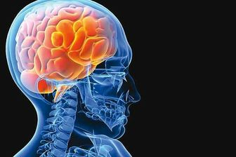 نشانه های سکته مغزی در زنان چیست؟