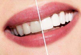 راههای پیشگیری از زرد شدن دندان