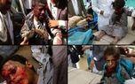 مسببان کشتار دانشآموزان یمنی محاکمه شوند