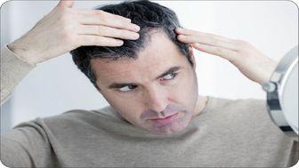 علت ریزش موی سر پس از ابتلا به کووید ۱۹