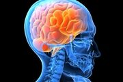 روش نوین درمان بیماران سکته مغزی
