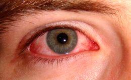 شایعترین علل ابتلا به عفونتهای چشمی
