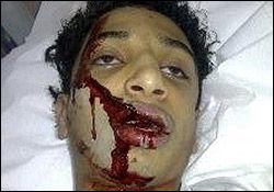 نوجوان ۱۴ ساله قربانی کینه آل خلیفه
