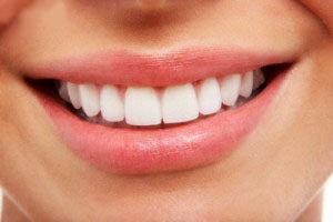 کامپوزیت بهتر است یا ارتودنسی دندان؟