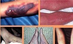 با جنایتهای میکروبی آمریکا آشنا شوید + تصاویر