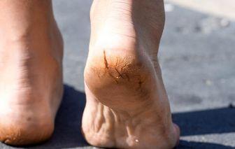 علل ایجاد ترک کف پا چیست؟