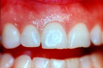 علل سایش دندانی چیست؟