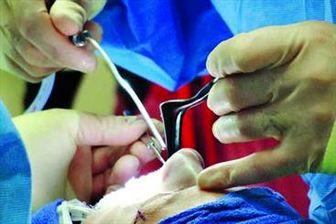 گرایش مردان ایرانی به سمت جراحی زیبایی