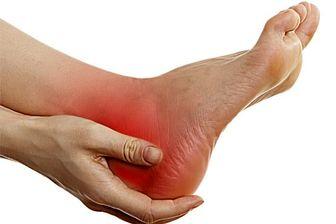 7 نکته درباره خار پاشنه پا که حتما باید بدانید