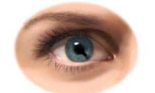 آبمروارید(cataract) چیست؟