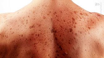 تاثیر ویتامین A در پیشگیری از نوعی سرطان پوست