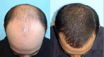 چند راهکار ساده اما بسیار مؤثر برای پرپشتشدن موها