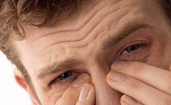 ترفندهایی برای درمان خشکی بینی +اینفوگرافیک