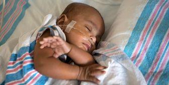 آمار مرگ کودکان سیاهپوست بعد از عمل بسیار بیشتر از کودکان سفیدپوست است