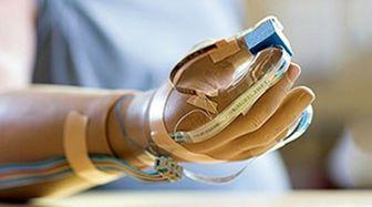 ساخت دست مصنوعی با قابلیت کار با رایانه و تلفن همراه