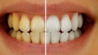راهی معجزه آسا برای سفید کردن دندان