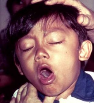 Whooping cough rising at alarming rate in U. S.