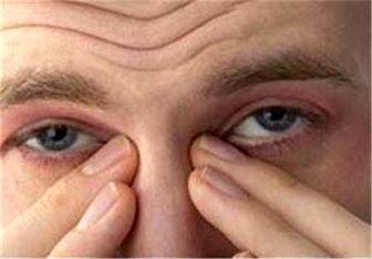 روش های طلایی برای رفع خستگی و تقویت چشم ها