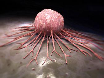 علائم هشداردهنده ابتلا به انواع سرطانها را نادیده نگیرید
