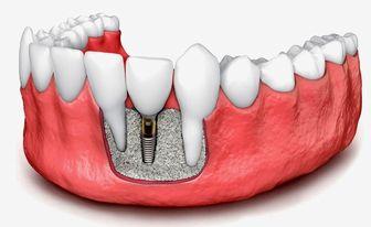 ایمپلنت دندان چیست | به همراه مزایا و معایب و عوارض
