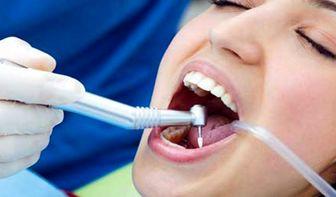 درباره پر کردن دندان بیشتر بدانید