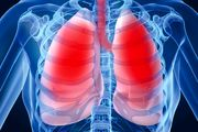 بیماری دردناکی که ریهها را به آتش میکشد