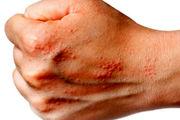اگزمای پوستی ربطی به کمبود ویتامین در بدن ندارد