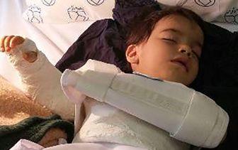 جراحی اشتباهی دست پسر بچه در بیمارستان اصفهان+عکس
