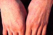 درباره آلرژی به آفتاب جه میدانید؟