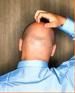 یبوست سبب ریزش مو میشود