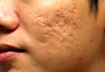 چگونه از جوش زدن پوست جلوگیری کنیم؟