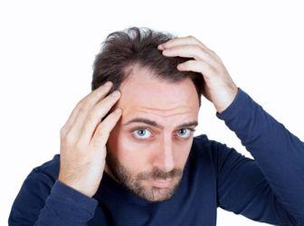 چرا موهایتان چرب میشود؟