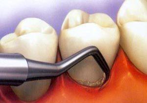 روش درمانی جدیدی برای ترمیم دندانهای آسیب دیده ابداع شد