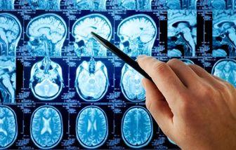 نشانههای وجود تومور در غده هیپوفیز