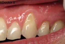 علت باد کردن لثه دندان