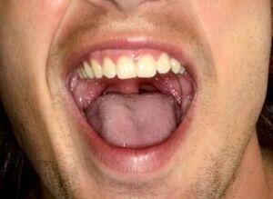 راهکار طلایی برای درمان خشکی دهان