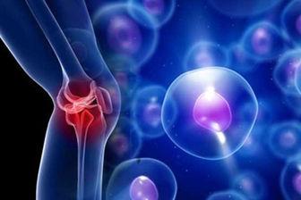 آیا بالا رفتن از به عضلات زانو آسیب وارد میکند؟
