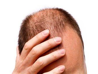 10 دلیل شایع ریزش مو