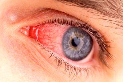 Image result for توضیحات التهاب چشم