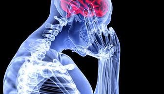 کشف روشی تازه برای رهایی از دردهای عصبی