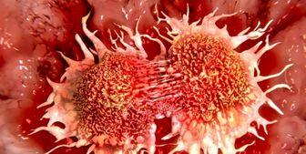 مهمترین علت سرطان معده