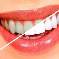 از چه نخ دندانی استفاده کنیم؟!