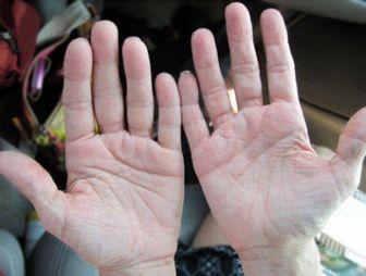 چرا باید لرزش دستها را جدی بگیریم؟